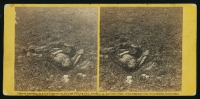 Dead Confederate soldier at Antietam, photographed by Alexander Gardner, circa Sept 1862
